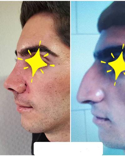نمونه کار جراحی بینی دکتر حسن طاهری4