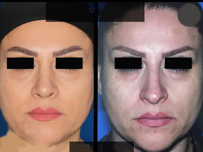 نمونه جراحی بینی دکتر صفری3