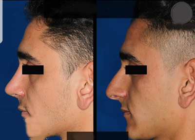 نمونه جراحی بینی دکتر صفری4