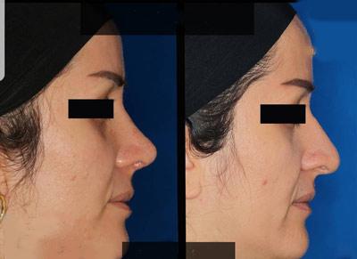 نمونه جراحی بینی دکتر صفری2