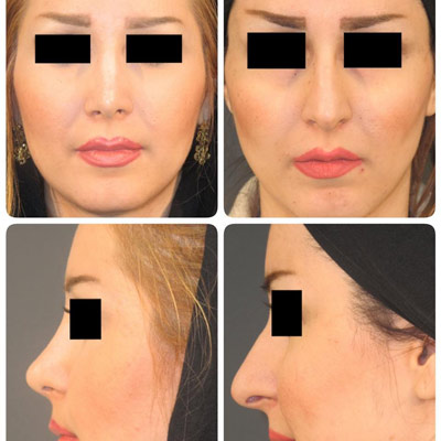 نمونه جراحی بینی دکتر نوری2