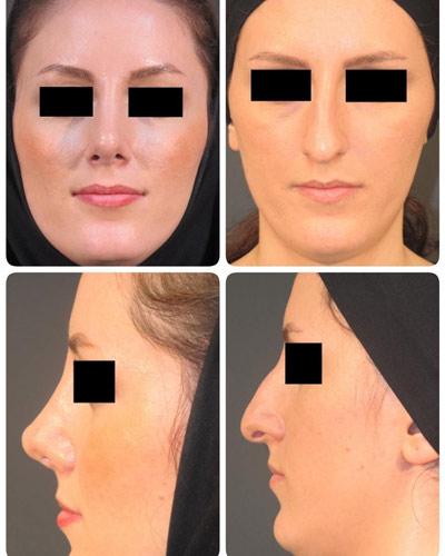 نمونه جراحی بینی دکتر نوری3