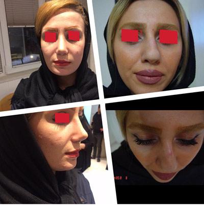 نمونه جراحی بینی دکتر ابراهیمی2