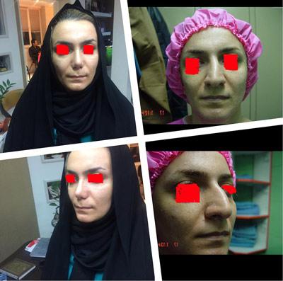نمونه جراحی بینی دکتر ابراهیمی3