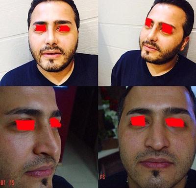 نمونه جراحی بینی دکتر ابراهیمی4