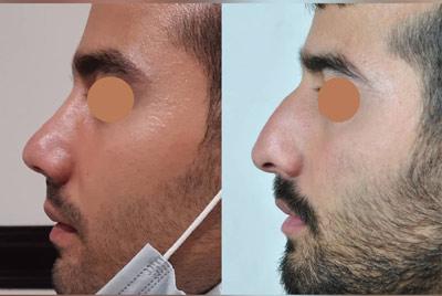 نمونه کار جراحی بینی دکتر عظیمی4