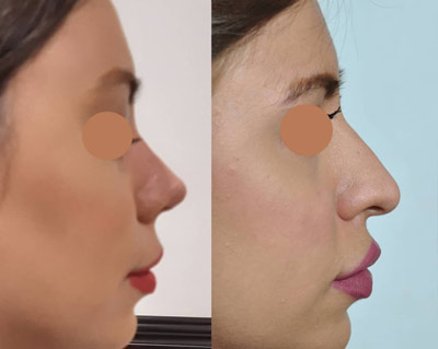 نمونه کار جراحی بینی دکتر عظیمی2