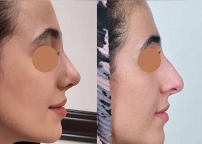 نمونه کار جراحی بینی دکتر عظیمی3
