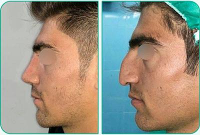 نمونه کار جراحی بینی دکتر یعقوبلو4