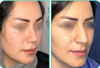 نمونه کار جراحی بینی دکتر یعقوبلو1