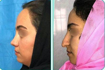 نمونه کار جراحی بینی دکتر یعقوبلو3