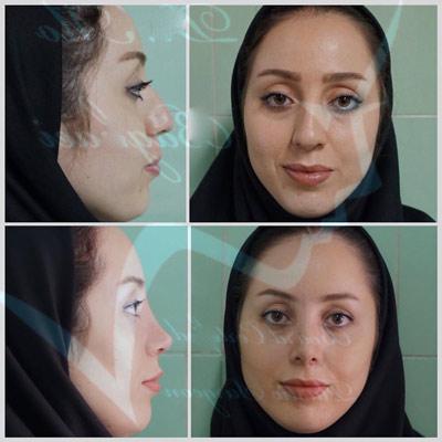 نمونه جراحی بینی دکتر بقائی1
