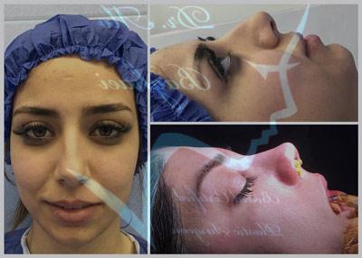 نمونه جراحی بینی دکتر بقائی2