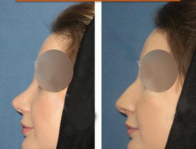 نمونه کار جراحی بینی دکتر خوبهی1