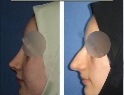 نمونه کار جراحی بینی دکتر خوبهی2