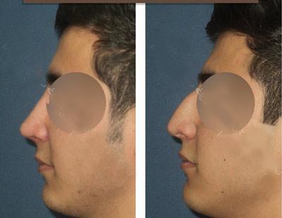 نمونه کار جراحی بینی دکتر خوبهی4