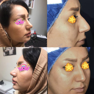 نمونه جراحی بینی دکتر یاصفهانی2