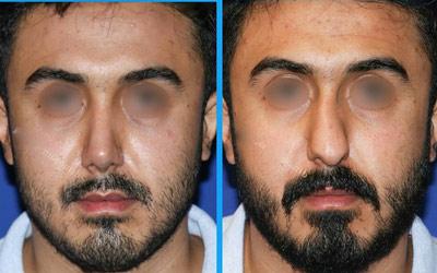 نمونه جراحی بینی دکتر گلی4