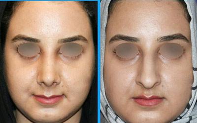 نمونه جراحی بینی دکتر گلی1