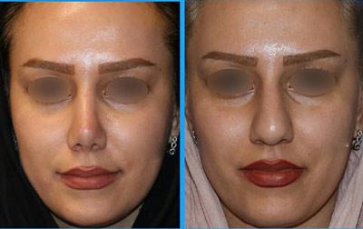 نمونه جراحی بینی دکتر گلی2
