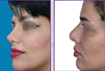نمونه کار جراحی بینی دکتر طهماسبی2