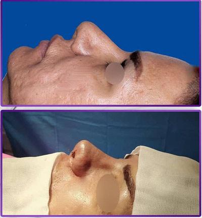 نمونه کار جراحی بینی دکتر طهماسبی4