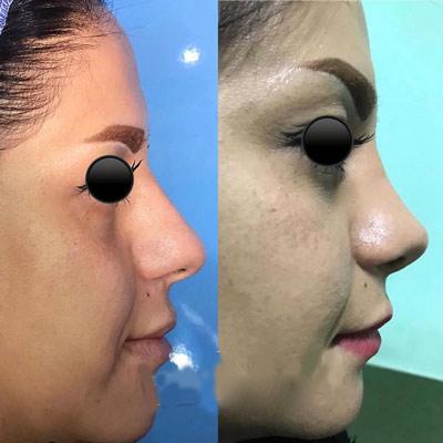 نمونه جراحی بینی دکتر اکبری2
