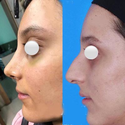 نمونه جراحی بینی دکتر اکبری3