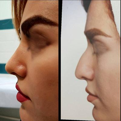 نمونه کار جراحی بینی دکتر آقائی1