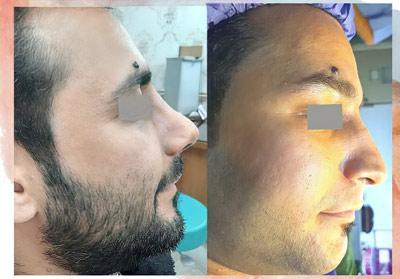 نمونه جراحی بینی دکتر زرین قلم 23