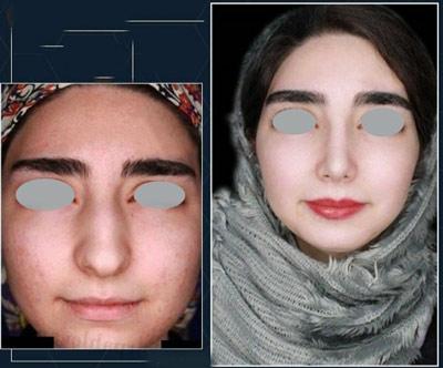 نمونه کار جراحی بینی دکتر پهلوان1