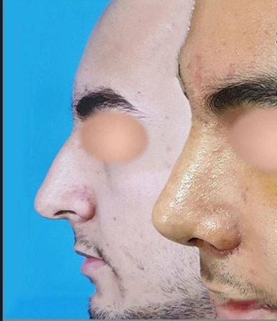 نمونه کار جراحی بینی دکتر پهلوان9
