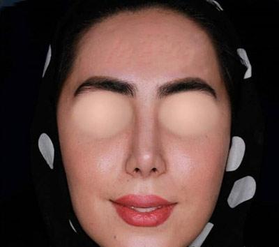 نمونه کار جراحی بینی دکتر پهلوان3