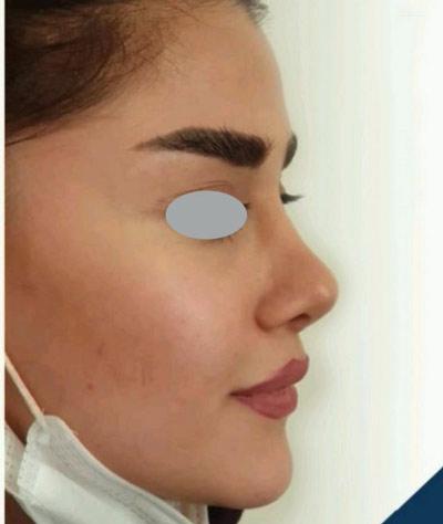 نمونه کار جراحی بینی دکتر پهلوان5