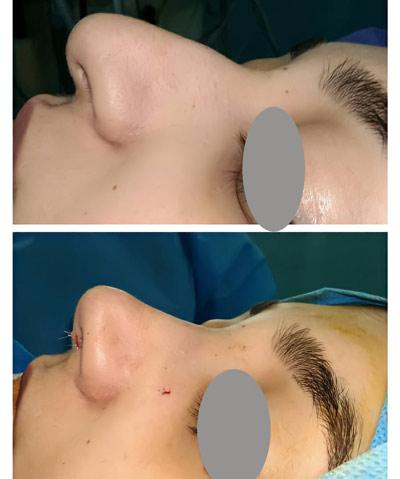 نمونه کار جراحی بینی دکتر عرفانیان3