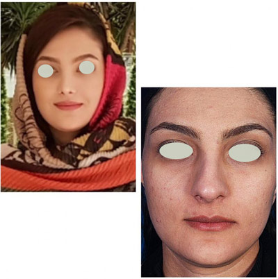 نمونه کار جراحی بینی دکتر تویسرکانی2