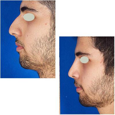 نمونه کار جراحی بینی دکتر تویسرکانی4