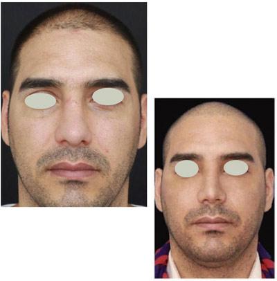 نمونه کار جراحی بینی دکتر تویسرکانی7