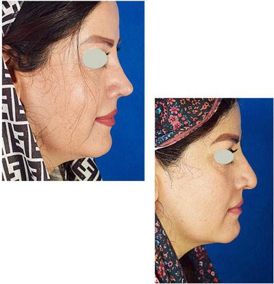 نمونه کار جراحی بینی دکتر تویسرکانی3