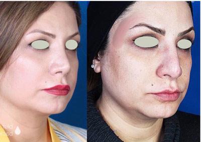 نمونه کار جراحی بینی دکتر تویسرکانی6
