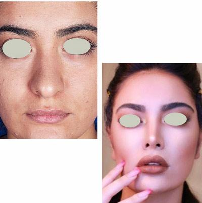 نمونه کار جراحی بینی دکتر تویسرکانی10