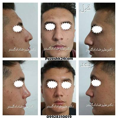 نمونه کار جراحی بینی دکتر دادگستر5