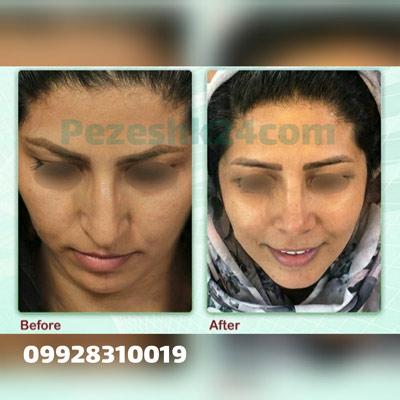 نمونه کار جراحی بینی دکتر مومنی8