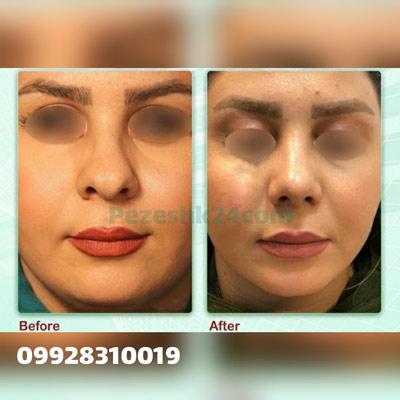 نمونه کار جراحی بینی دکتر مومنی1