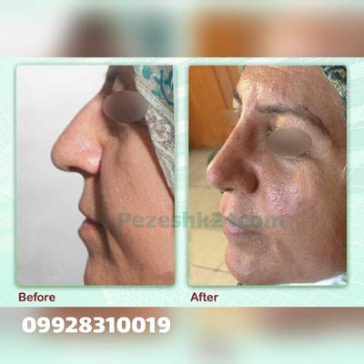 نمونه کار جراحی بینی دکتر مومنی5