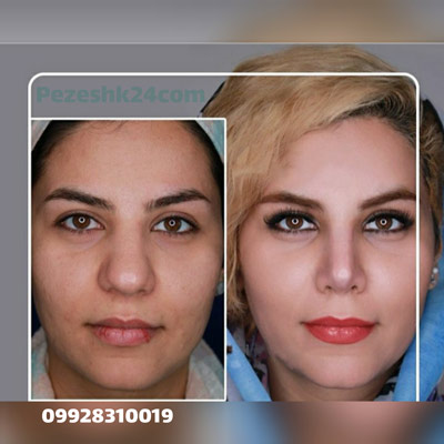 نمونه کار جراحی بینی دکتر پهلوان14