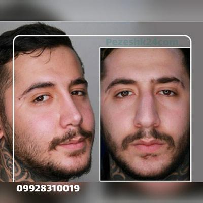 نمونه کار جراحی بینی دکتر پهلوان17