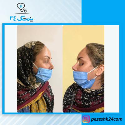 نمونه جراحی بینی دکتر حق پناه5