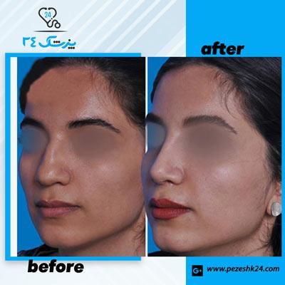 نمونه جراحی بینی دکتر سرکارات 5
