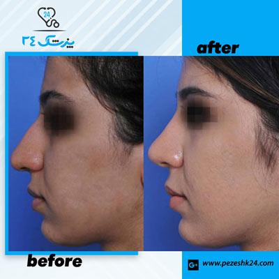 نمونه جراحی بینی دکتر سرکارات 7